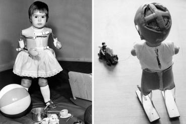 Kinder mit Prothesen