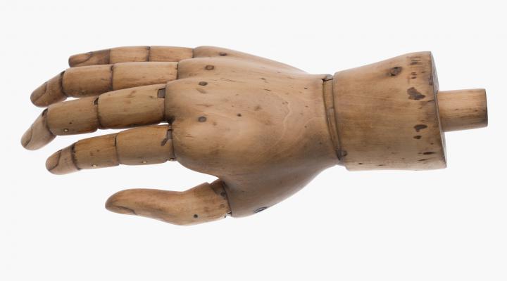 Handprothese (Handrücken)